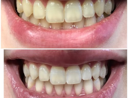 Teeth Whitening in Rockville, Maryland