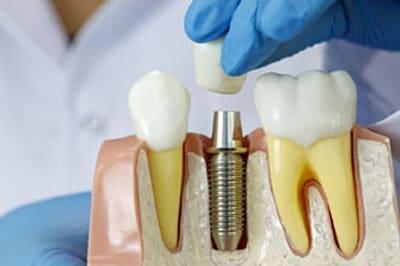 dental implants north bethesda